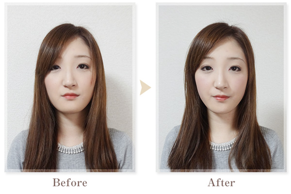 BeforeAfter画像01