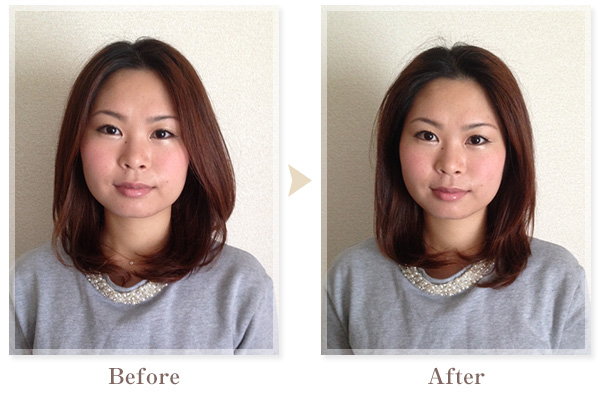 BeforeAfter画像03