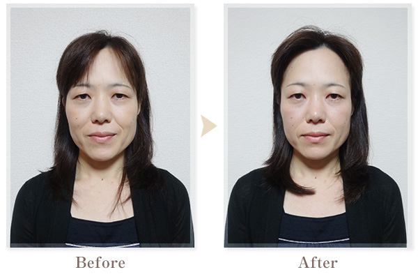 BeforeAfter画像04