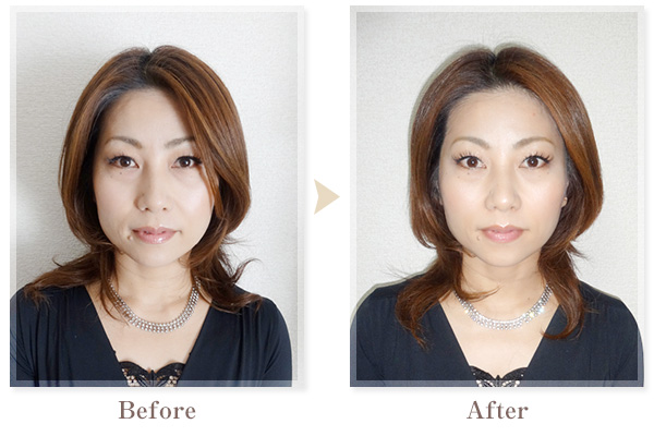 BeforeAfter画像05